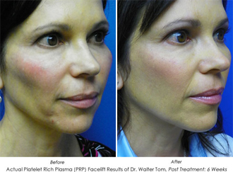 PRP Rejuvenation
