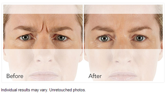 XEOMIN® Before and After